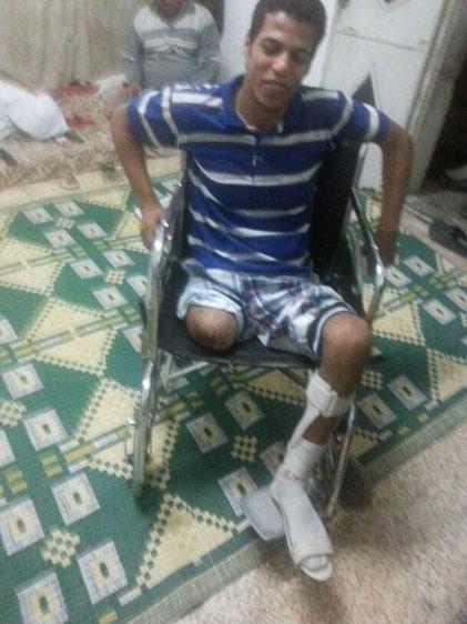 Download  ein Bein verloren haben ist groß. Das Prothesenprojekt